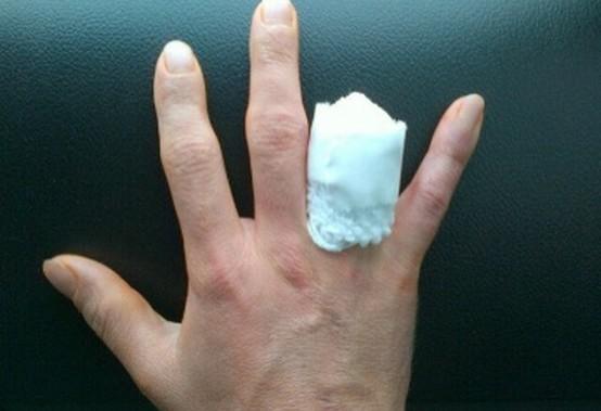 Superbike: Il calvario di John Hopkins si chiude con l'amputazione del dito